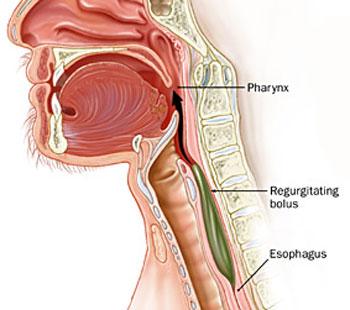 بیماری دیسفاژی, عفونت سیستم تنفسی