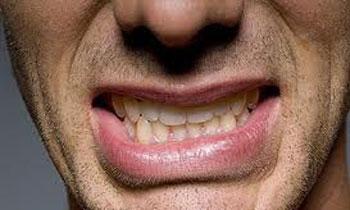 دندانقروچه, درمان دندان قروچه