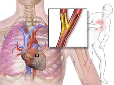 درد قفسه سینه, بیماری قلبی و عروقی