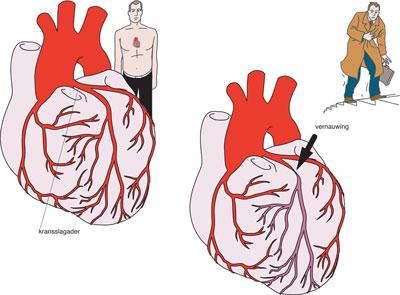 حمله قلبی, علائم بیماری آنژین