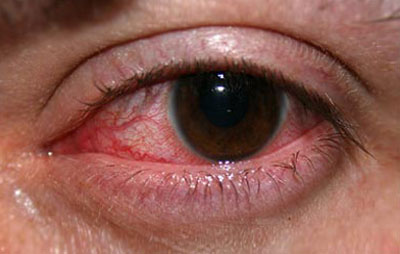 Image result for عکسی از تراخم چشم