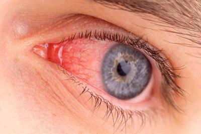 he3534 عوامل و علائم عفونت چشم