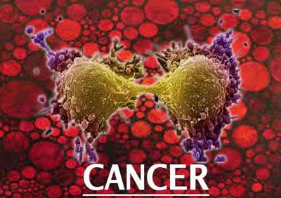 سرطان,درمان سرطان,تغذیه سالم