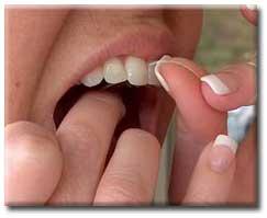 بیماری لثه, پلاکهای چسبنده در بین دندانها, کشیدن نخ دندان, جراحی پلاستیک, سطح دندان, بازسازی و پلاستیک, دهان, حفرههایی در ناحیه چانه و لبها, خونریزی و حساسیت لثهها, بیماریهای لثه,نخ دندان,