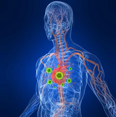 علائم بیماری اندوکاردیت, دریچههای قلب
