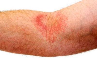 درمان پوست عرق سوز شده , بیماریهای پوستی