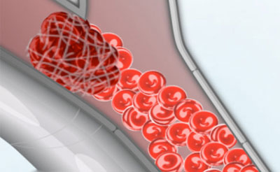 بیماری آمبولی شریانی,شرح بیماری آمبولی شریانی,علایم بیماری آمبولی شریانی