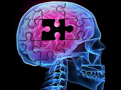 بیماری آلزایمر چیست؟ علائم و راه درمان بیماری آلزایمر