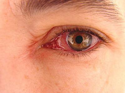 عوارض بيماري ديابت, شبکيه چشم