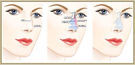 رینوپلاستی چیست| سن عمل جراحی بینی