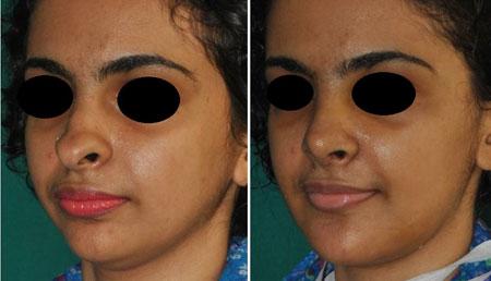 عمل زیبایی بینی با لیزر