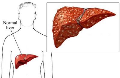 بیماری سیروز صفراوی| سیستم ایمنی بدن
