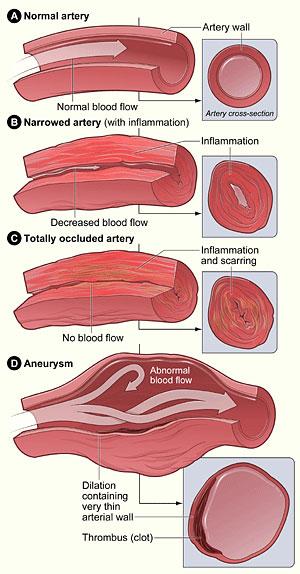 بیماریهای قلبی و عروقی| درمان بیماری