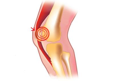 سندرم درد قدام زانو| سندرم دوندهها