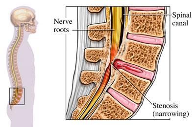 درمان تنگی کانال نخاعی, عمل جراحی کانال نخاعی