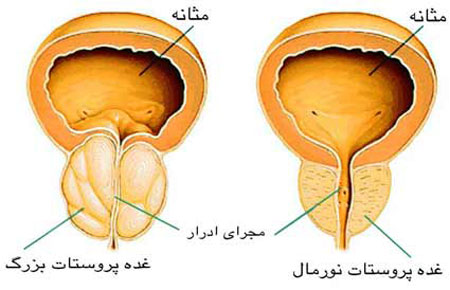 سرطان پروستات| بیماریهای غیرواگیر
