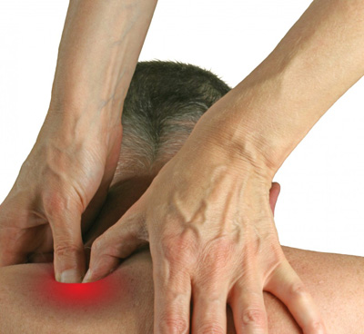 نقاط ماشهای میوفاسیال،علائم سندرم درد میوفاسیال