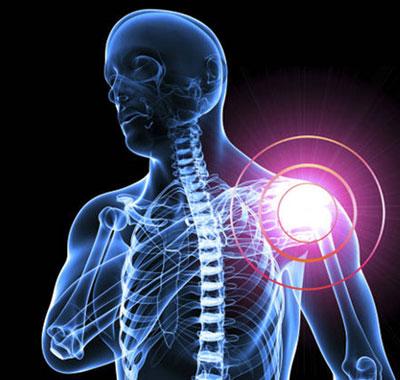 بیماری التهابی| علائم سندروم شانه یخ زده