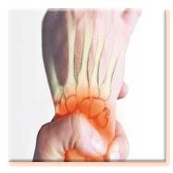 بیماری آرتروز, كلسيم, لاغر, ويتامين د, غضروف, انواع بیماری, مبتلايان به آرتروز,آرتروز, تغذيه, درد مفاصل, افراد چاق,