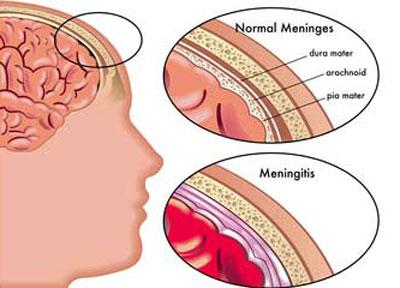 عفونت ویروسی, علائم بیماری مننژیت