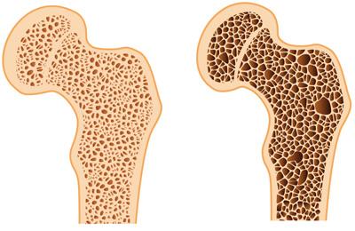 علل بروز پوکی استخوان| آرتروز روماتوئیدی
