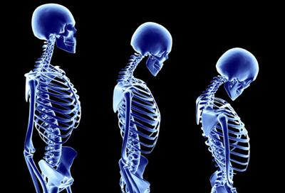 پوکی استخوان, درمان پوکی استخوان