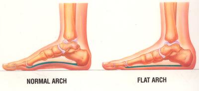 توصیه هایی به مبتلایان به عارضه کف پای صاف