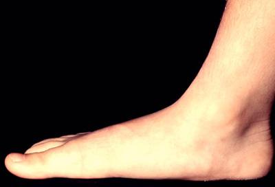 تقویت پا,کف پای صاف