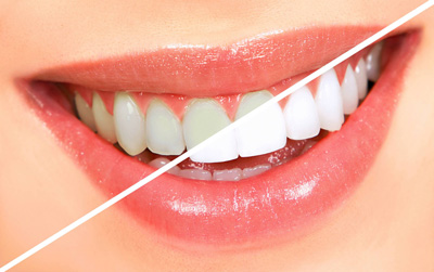 راه حلهای خانگی سفید کردن دندانها, بهداشت دهان و دندان