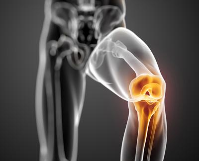 راههای حفظ مفصل زانو
