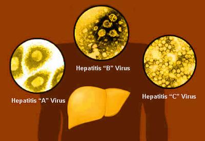 علایم بیماری هپاتیت, هپاتیت چیست