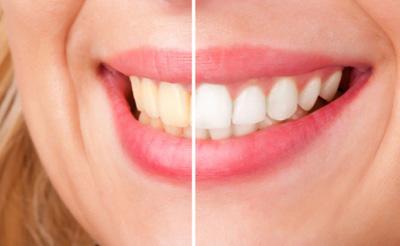 جرمگیری دندان ها , سفید کردن دندان ها