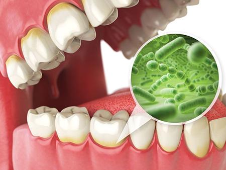 علت بوی بد دهان چیست, علل بوی دهان