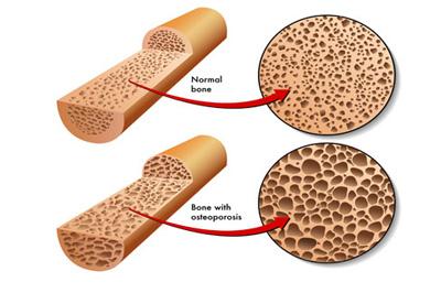 پیشگیری از پوکی استخوان , ضعیف شدن استخوان ها