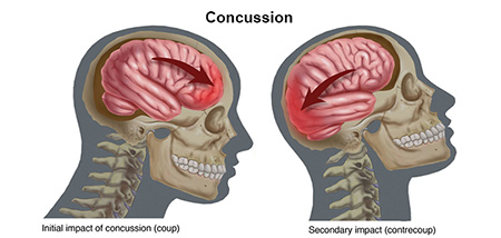 داروی ضربه مغزی, نشانه های ضربه مغزی