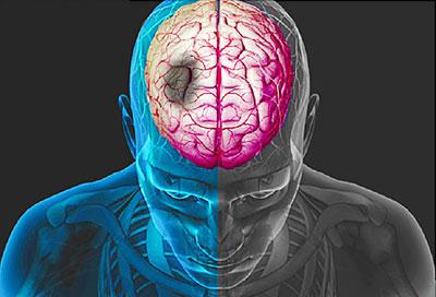 جلوگیری از سکته مغزی, عوارض سکته مغزی