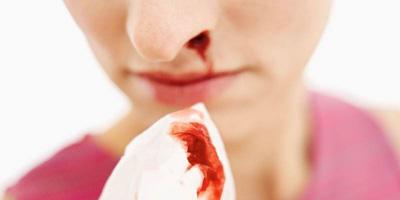 علت های خون دماغ شدن, علل خون دماغ در بزرگسالی