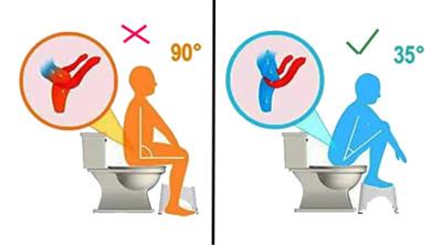 مضرات نشستن توالت ایرانی,درباره توالت ایرانی