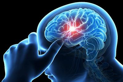نشانههای هشدار دهنده سکته مغزی