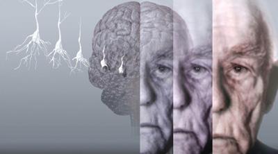 راه های جلوگیری از آلزایمر,ورزش و آلزایمر