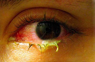 بهترین راه درمان قی چشم, درمان قی چشم نوزاد