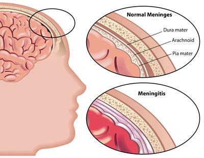 نشانه های بیماری مننژیت  , مننژیت