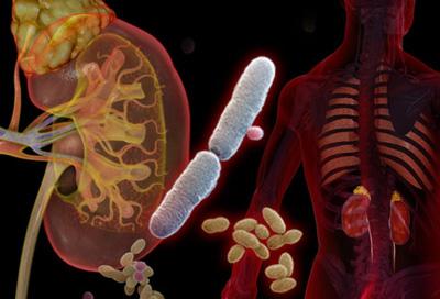 درمان عفونت ادراری در زنان, بیماری عفونت ادراری