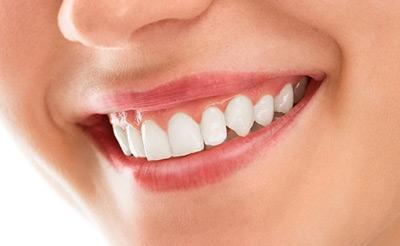 بیماری نتال , مشکلات دهان و دندان