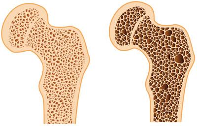 پیشگیری از پوکی استخوان با مواد غذایی, تغذیه و پوکی استخوان