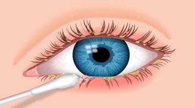 عفونت و قی چشم نوزاد, بیماری های چشمی