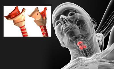 بیماریهای حنجره , سندرم خستگی صوتی