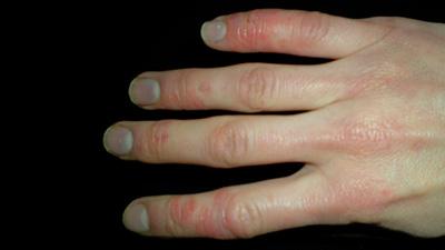علائم اسکلرودرمی , تغذیه در بیماری اسکلرودرمی