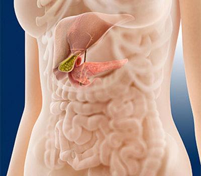 درمان پانکراتیت,بیماری پانکراتیت