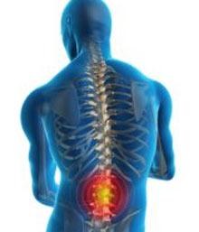 علل غیرمعمول کمردرد و درمان آن